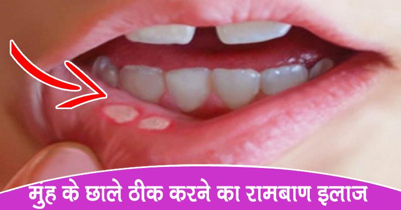 Rajiv Dixit Natural Health