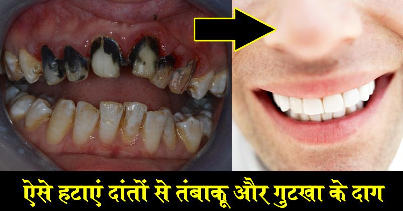 दांतों से ऐसे आसानी से हटाएं गुटखा-तंबाकू के दाग..Health Tips..